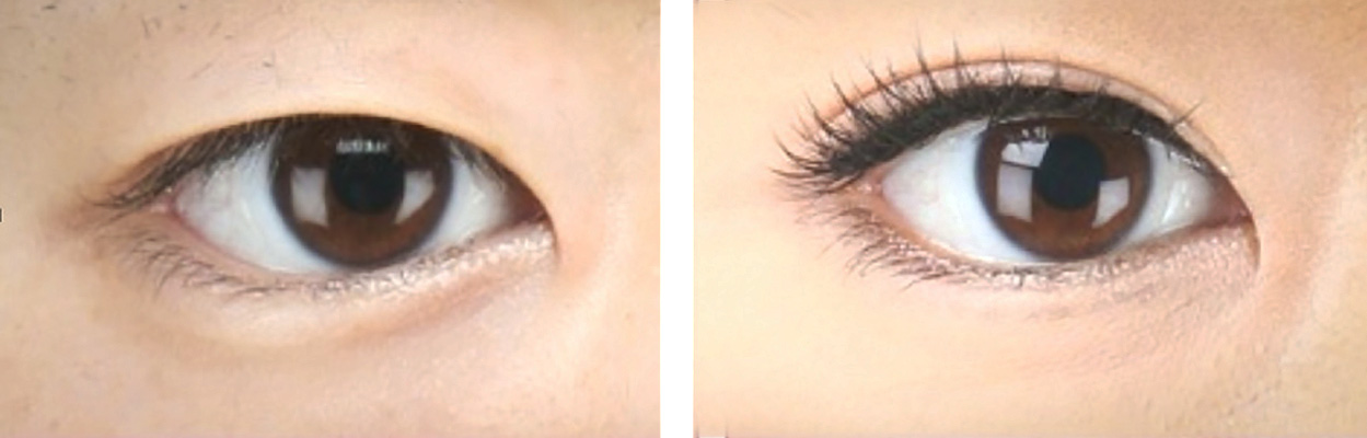 double eyelids before after