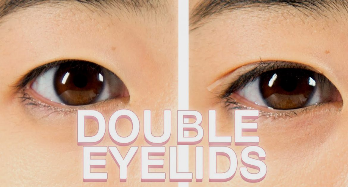Double Eyelid Surgery Overview: Technique, Benefits, Cost