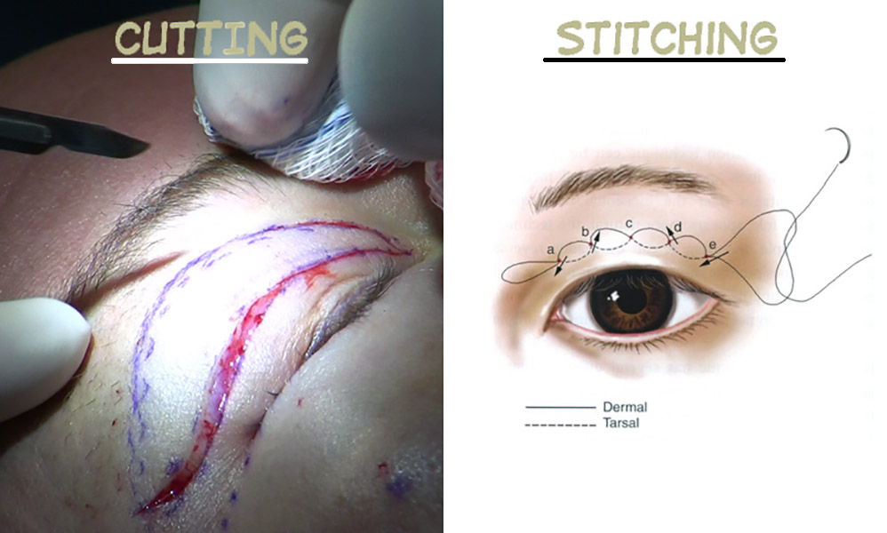 doyble eyelids stitching cutting