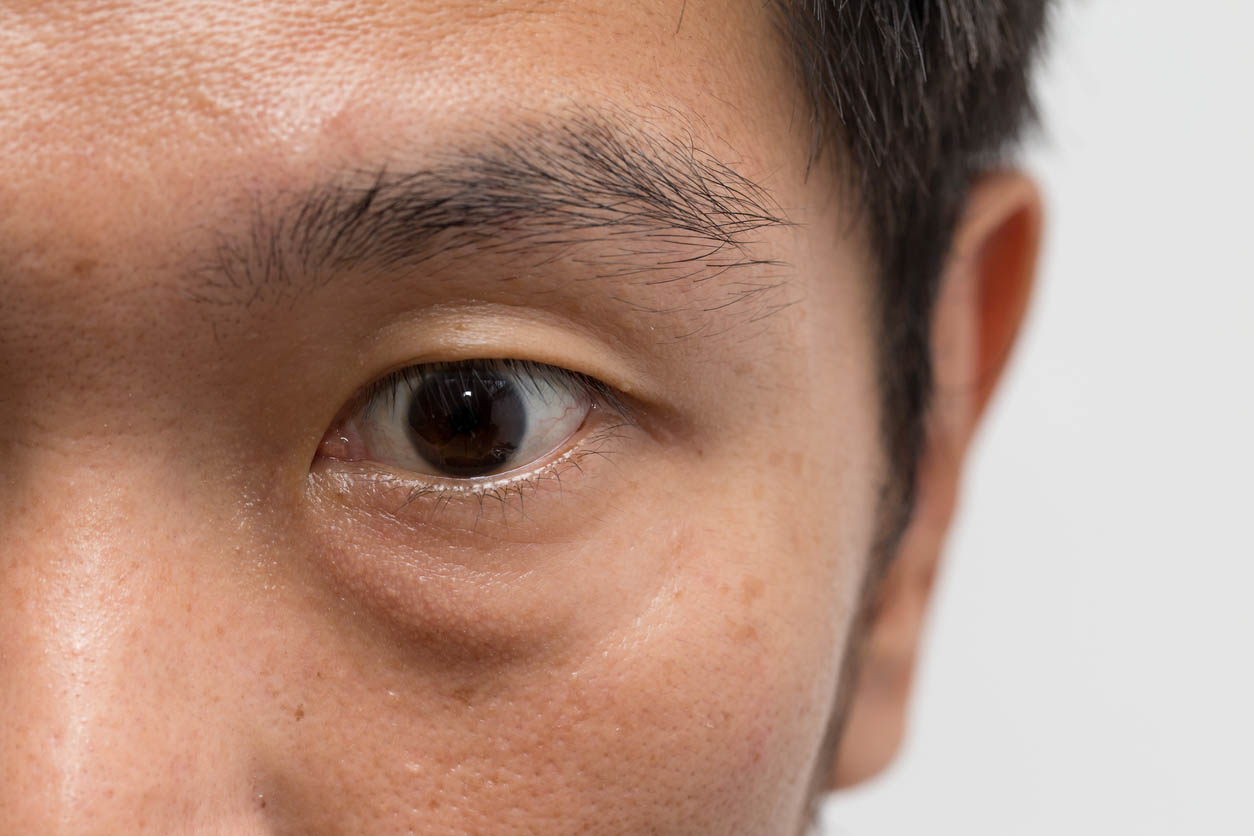 asian male man with big eye bag at the left eye