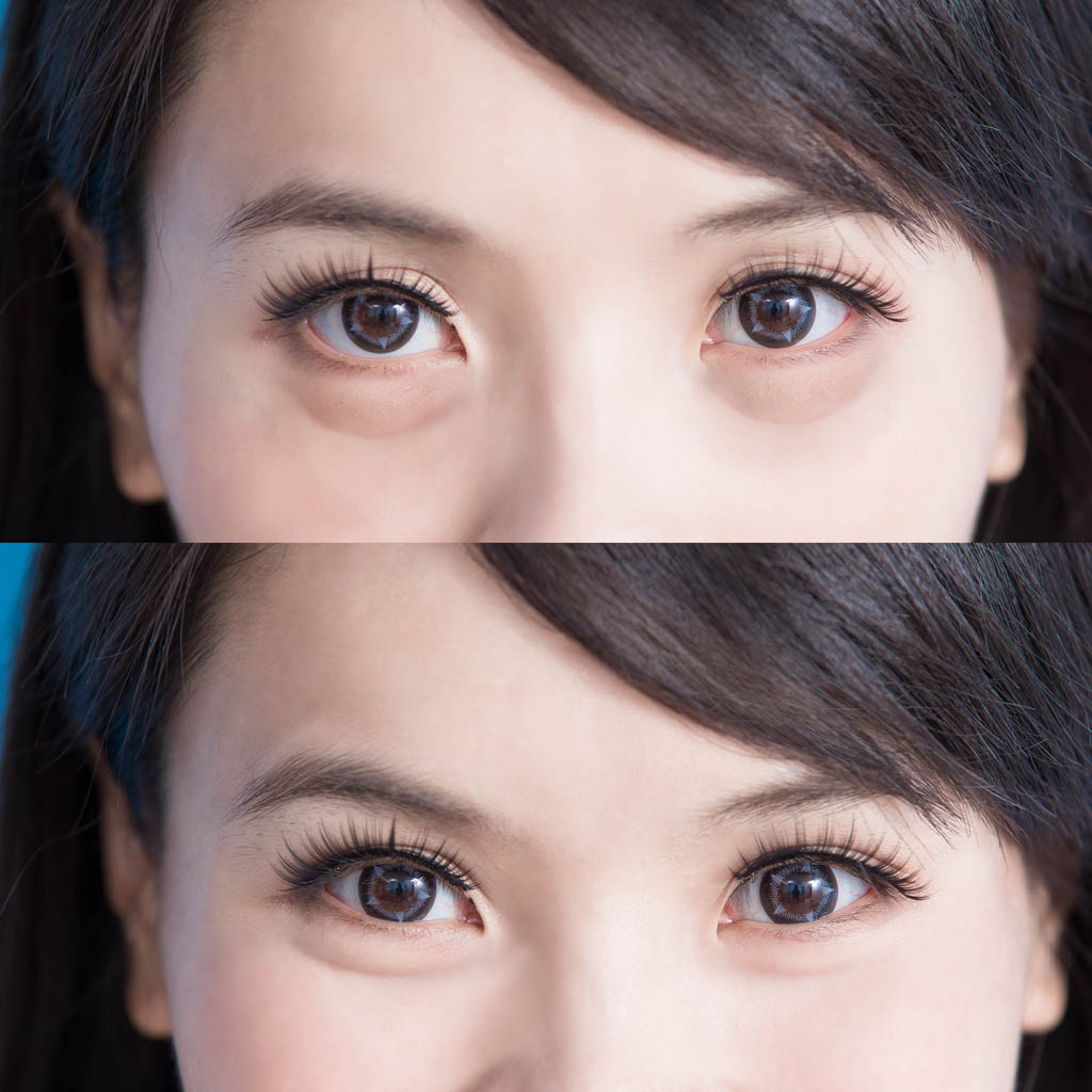 woman eye bags before after